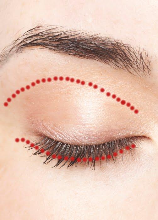 Incision site for Blepharoplasty Eyelid correction Surgery